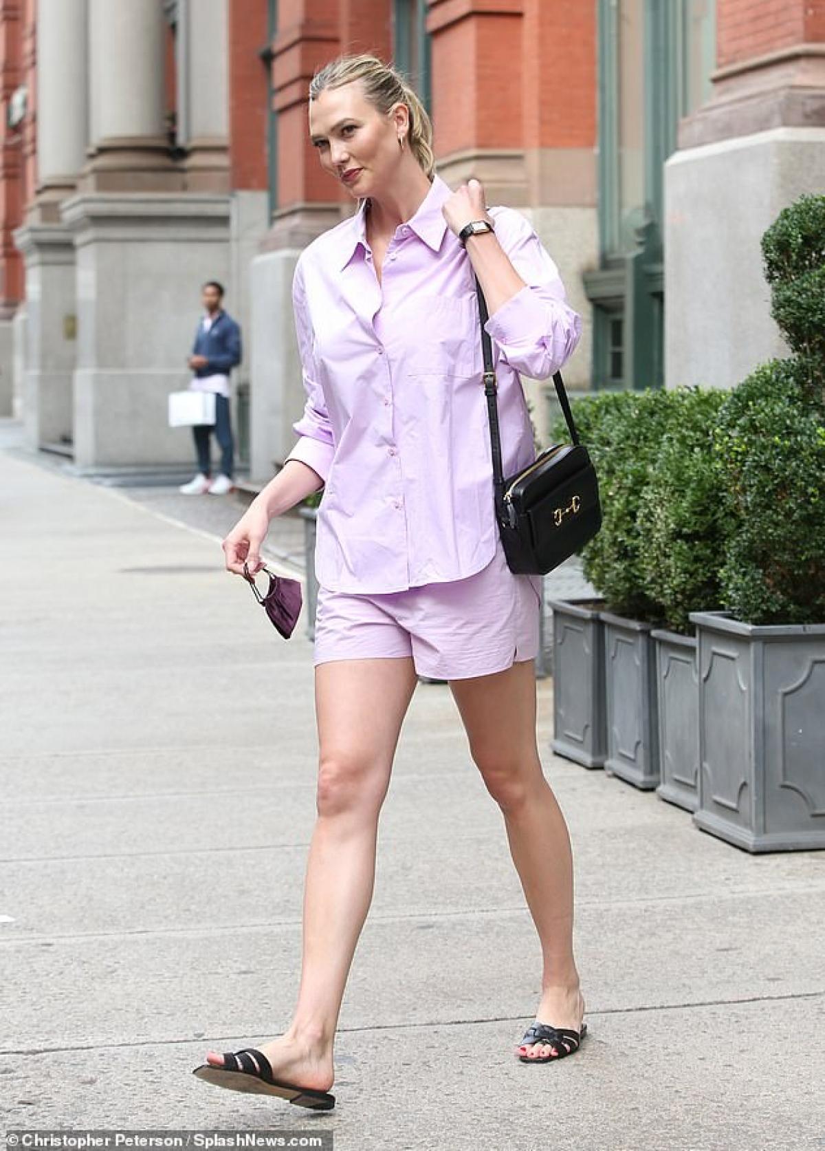 Karlie Kloss sở hữu vẻ ngoài cá tính.