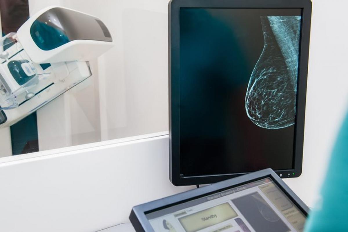 Nguy cơ mắc ung thư vú: Tất cả mọi người đều nên kiểm tra sức khỏe định kỳ, đặc biệt là người thuận tay trái. Một nghiên cứu của Anh đã cho thấy những người thuận tay trái có nguy cơ ung thư vú cao hơn người thuận tay phải, đặc biệt là sau thời kỳ mãn kinh.