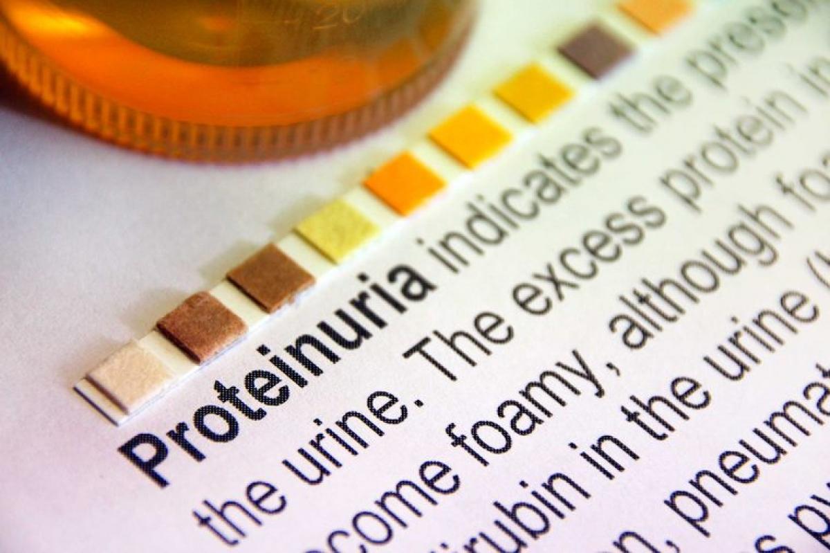 Protein trong nước tiểu: Một trong những triệu chứng tiêu biểu của tiền sản giật là protein trong nước tiểu, và bạn chỉ có thể phát hiện ra dấu hiệu này khi đi khám thai. Đây có thể là do các mạch máu ở thận bị rò rỉ, cho phép protein từ máu đi vào nước tiểu. Tình trạng này có thể xảy ra khi các mạch máu co thắt do huyết áp cao.