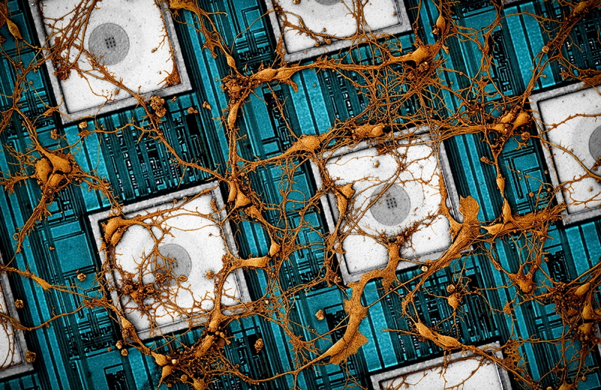 Hình ảnh tế bào thần kinh chuột trên mảng điện cực nano CMOS (CNEA) - Ảnh: Samsung