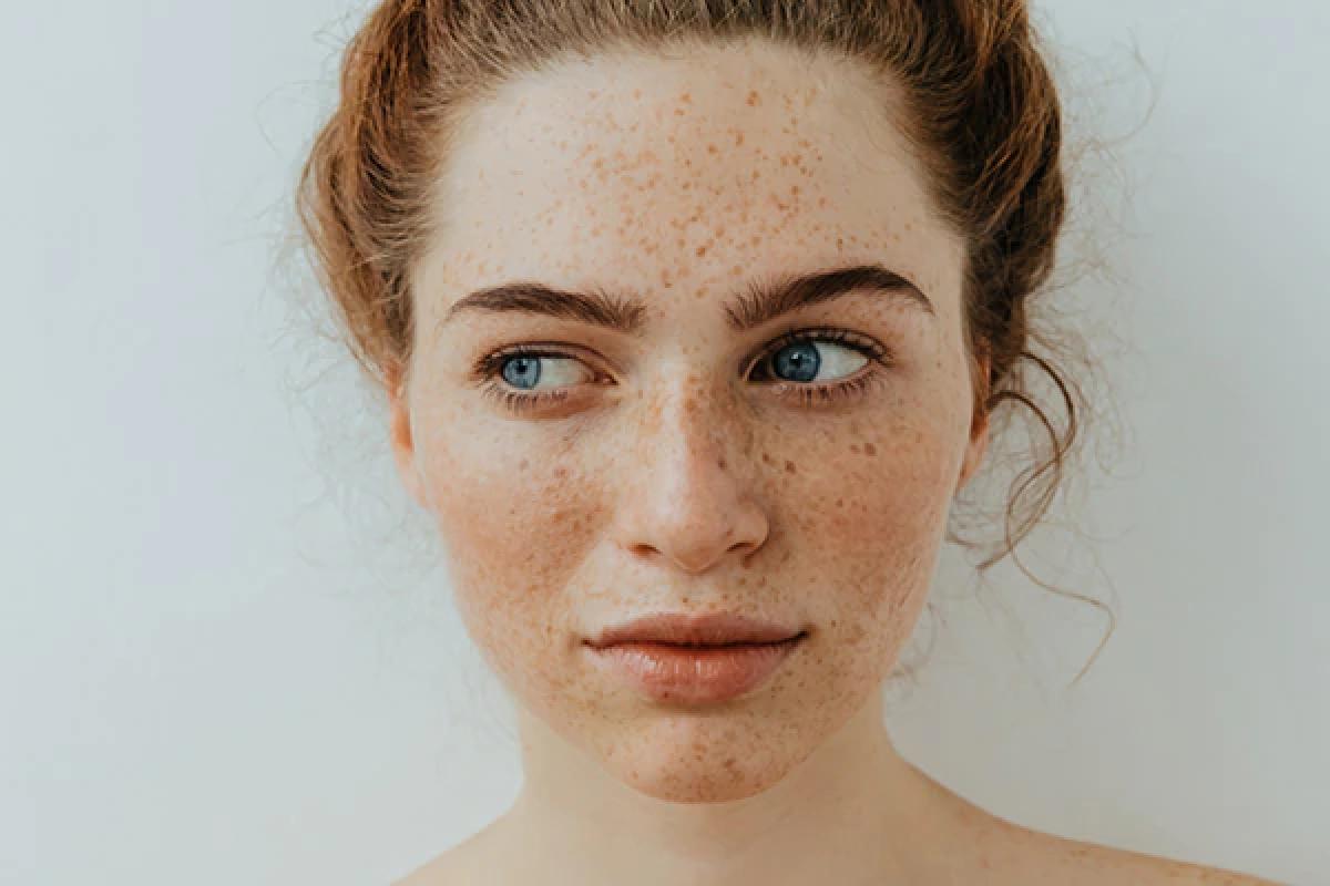 Tàn nhang là gì?: Tàn nhang là những chấm tròn nhỏ màu nâu nhạt có thể xuất hiện trên mặt, cánh tay, cổ và vai. Tàn nhang thường là hậu quả của việc tiếp xúc với ánh nắng mặt trời quá lâu, dẫn đến mất cân bằng melanin. Tàn nhang nhìn chung không gây hại.