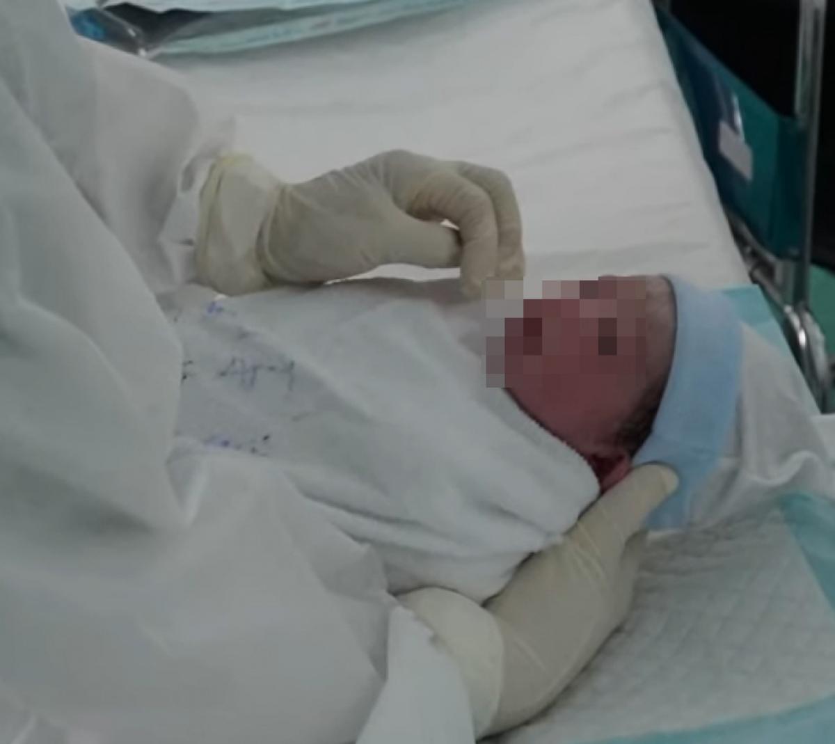 Trẻ sơ sinh vừa được phẫu thuật từ người mẹ dương tính với SARS-CoV-2.