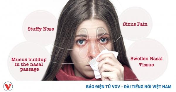 Không nên tùy tiện dùng thuốc để trị ngạt mũi | VOV.VN